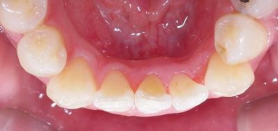 舌側転移で舌を咬む5.jpg