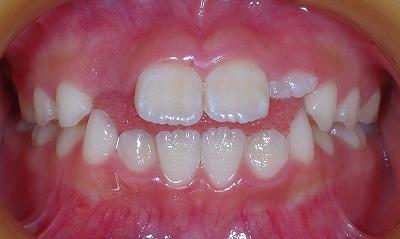 舌癖による開口、13,7-1.jpg