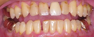 舌癖による前歯の離開1.jpg