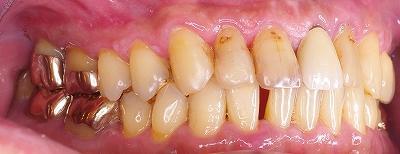 舌癖による前歯の離開2.jpg
