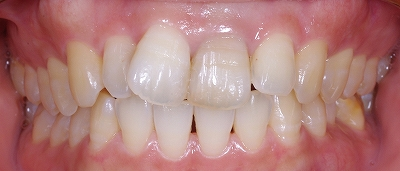 舌癖による前歯開口1.jpg