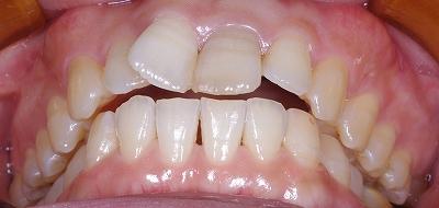 舌癖による前歯開口2.jpg