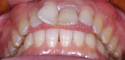 舌癖による前歯開口3.jpg