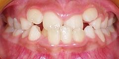 前歯のかみ合わせが反対、下顎が前に出ている1.jpg