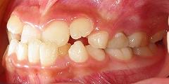 前歯のかみ合わせが反対、下顎が前に出ている2.jpg