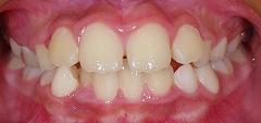 前歯のかみ合わせ反対、下顎5.jpg