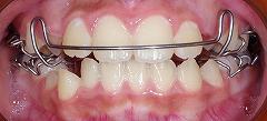 前歯のかみ合わせ反対、下顎7.jpg