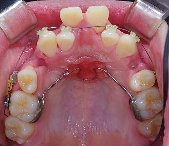 中切歯唇側転移1.jpg