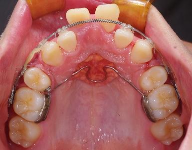 中切歯唇側転移2.jpg