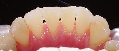 動揺歯をワイヤー固定1.jpg