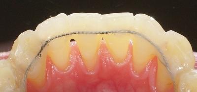 動揺歯をワイヤー固定2.jpg