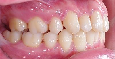 日常生活支障歯並び後横.jpg