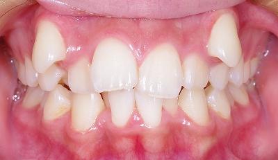 八重歯典型的正面.jpg