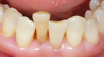 70代叢生改善下顎前歯2.jpg