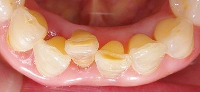 70代叢生改善下顎前歯3.jpg