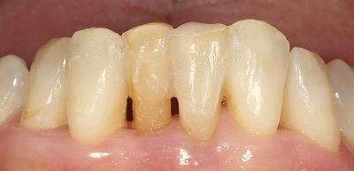 70代叢生改善下顎前歯4.jpg