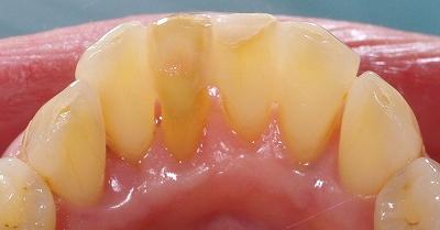 70代叢生改善下顎前歯5.jpg