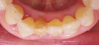 70代叢生改善下顎前歯6.jpg
