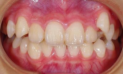 右上の八重歯1.jpg