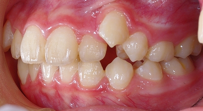 右上の八重歯2.jpg