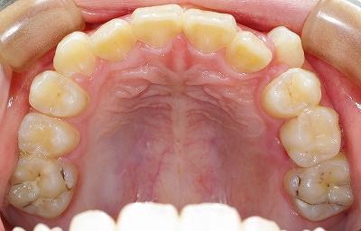 右上の八重歯3.jpg
