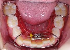 下顎前歯叢生2.jpg