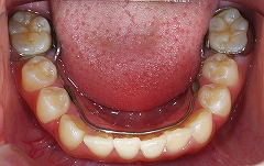 下顎前歯叢生4.jpg