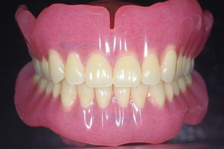 大きな総義歯前.jpg