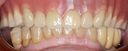マグフィット、義歯、8.jpg