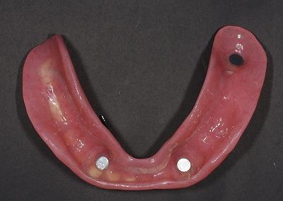 マグフィット義歯ー裏側.jpg