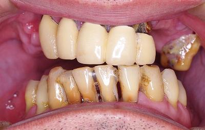 咬合崩壊を義歯回復1.jpg