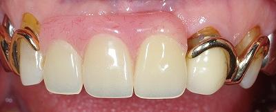 上顎前歯義歯1.jpg