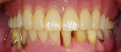 咬合崩壊義歯回復2.jpg