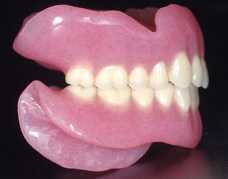大きな総義歯右.jpg