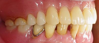 咬合崩壊義歯回復4.jpg