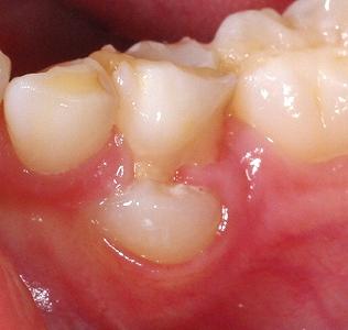 乳歯の下から永久歯.jpg
