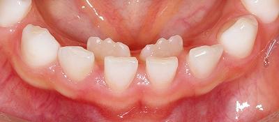 乳歯の後ろから永久歯が.jpg