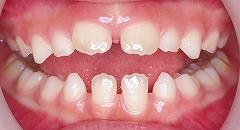 乳歯の前歯の先欠1.jpg