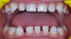 乳歯先欠2.jpg