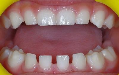 乳歯先欠前歯2本-2.jpg