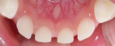 乳歯先決前歯2本ー4.jpg