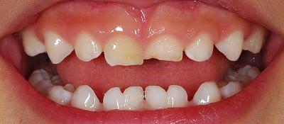 乳歯癒合歯左右4本-1.jpg