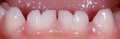 乳歯癒合歯左右4本ー2.jpg
