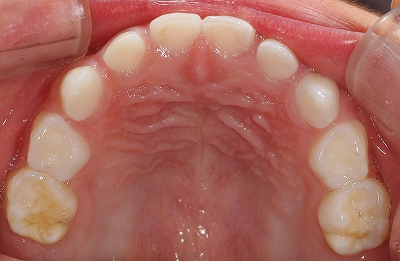 エナメル質形成不全第2乳歯上.jpg