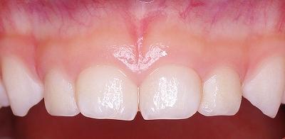 永久歯の萌出スペース不足14、-1.jpg