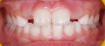 永久歯の萌出スペース不足14-2.jpg