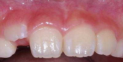 永久歯の萌出スペース不足14-3.jpg