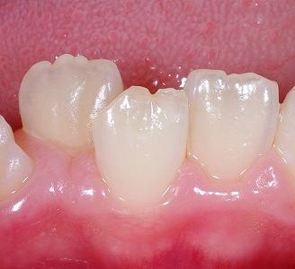 萌出直後の前歯の形態.jpg