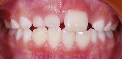 埋伏過剰歯による萌出不全1.jpg