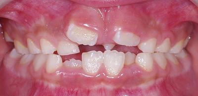 上顎正中過剰歯・円錐歯1.jpg